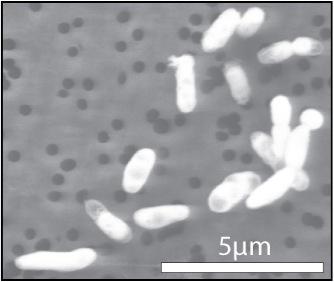 Το βακτήριο όπως μεγαλώνει με φώσφορο