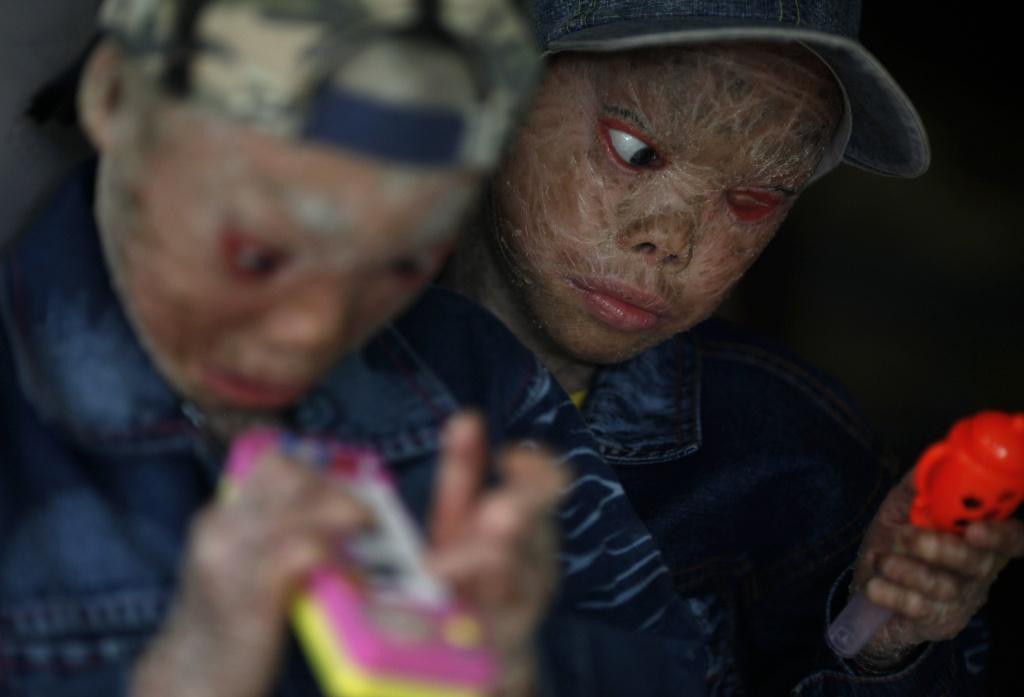 Η εικόνα τους τρομάζει. Κι όμως είναι μικρά παιδιά που έχουν στερηθεί τα πάντα και θα περάσουν την υπόλοιπη ζωή τους στην απομόνωση ΦΩΤΟ REUTERS