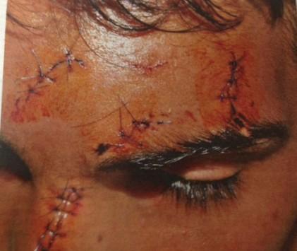 Τον χαράκωσαν στο κέντρο της Αθήνας. Ρατσιστική επίθεση σε 14χρονο παιδί !