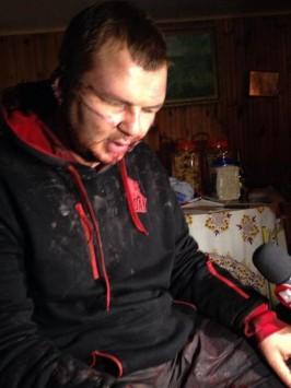 Αυτός είναι ο άνδρας που τον σταύρωσαν και του έκοψαν το αυτί - ΦΩΤΟΓΡΑΦΙΑ: kyivpost.com
