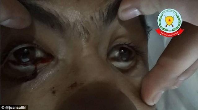 Νέο μακελειό στο Κομπάνι! - Οι τζιχαντιστές επιτίθενται με χημικά όπλα - Δεκάδες θύματα