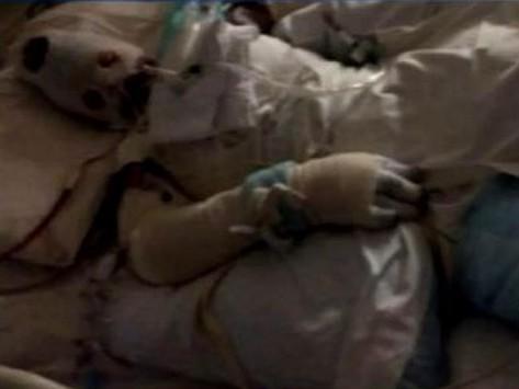 Απίστευτο: 19χρονη καίγεται ζωντανή μετά από κατάποση αντιβιωτικού