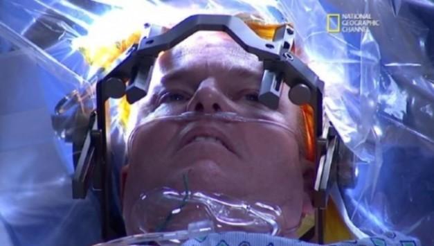 Εκπληκτικό: Δείτε την πρώτη LIVE επέβαση εγκεφάλου που μεταδόθηκε στην TV σε 171 χώρες (ΒΙΝΤΕΟ)