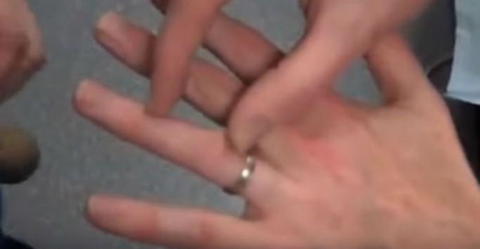 Ο εύκολος τρόπος για να βγάλετε ένα δαχτυλίδι που έχει σφηνώσει στο δάχτυλο σας!