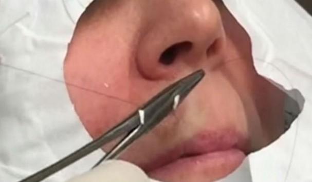 Ανατριχιαστικό: H γυναίκα φρίκαρε όταν της έβγαλαν αυτό πάνω από τα χείλη!