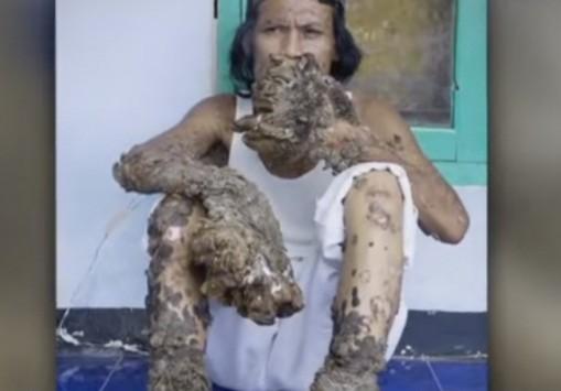 Πέθανε ο `άνθρωπος - δέντρο`, νικημένος από τον ιό `Λεβαντόφσκι` (ΒΙΝΤΕΟ & ΦΩΤΟ)