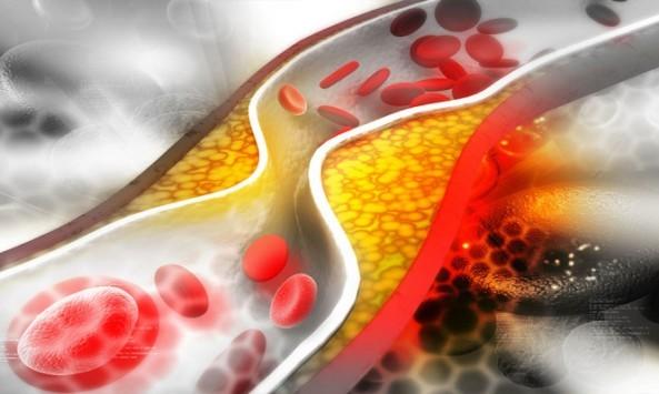 Χοληστερίνη: Τα συνιστώμενα όρια ανά ηλικία