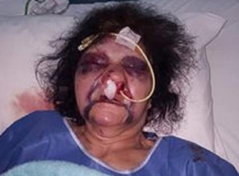 Ρόδος: Σοκάρει ο άγριος ξυλοδαρμός γυναίκας από ληστή - Οι εικόνες και το μήνυμα του γιου της [pics]