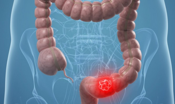 Καρκίνος του παχέος εντέρου: Αυτά είναι τα πρώιμα συμπτώματα