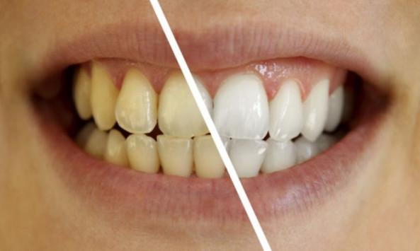 Ένα απίθανο διάλυμα κάνει τα δόντια πιο αστραφτερά με το βούρτσισμα