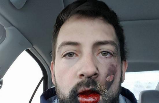 Ανατινάχτηκε το ηλεκτρονικό τσιγάρο στο στόμα του - Εγκαύματα και 7 σπασμένα δόντια [pics]