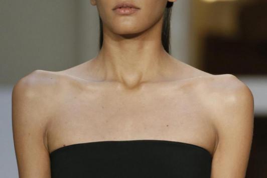 Σοβαρές καταγγελίες μοντέλων: Τα πρακτορεία μάς ωθούν στην ανορεξία!