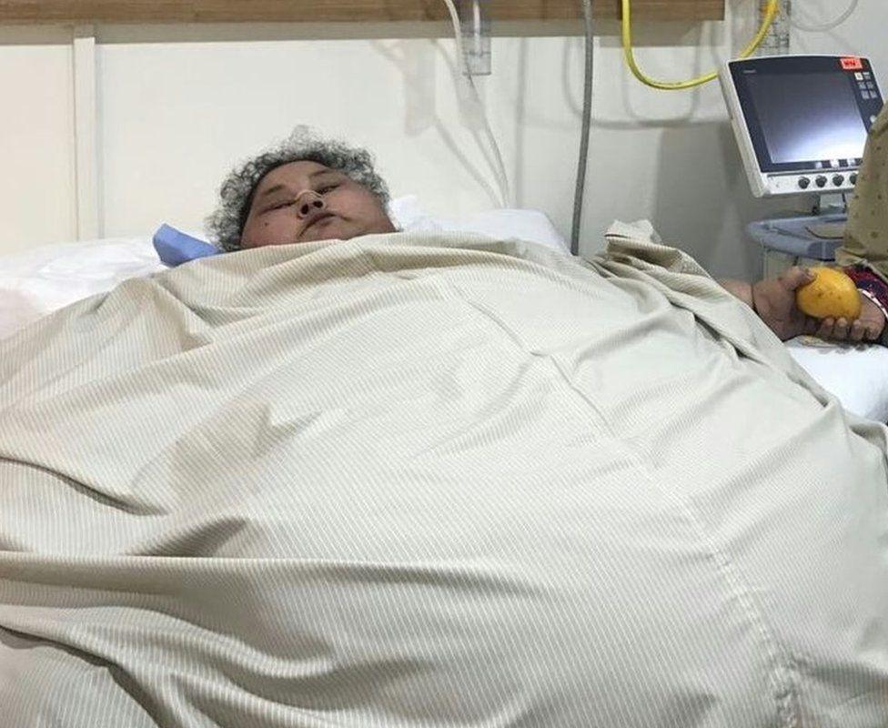 Η γυναίκα πριν την εγχείρηση / Φωτογραφία από bbc.co.uk