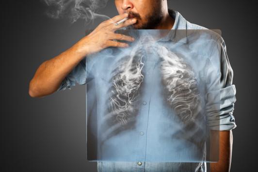 Κάπνισμα: Τα πάνω-κάτω φέρνει έρευνα για τα light τσιγάρα – Οδηγούν σε αδενοκαρκίνωμα;