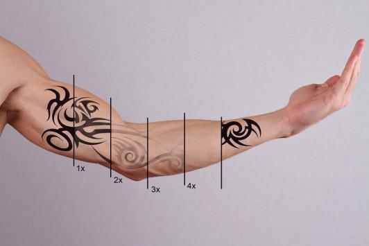 Μετανιώσατε για κάποιο τατουάζ; Δείτε πώς γίνεται αφαίρεση με λέιζερ [vids]