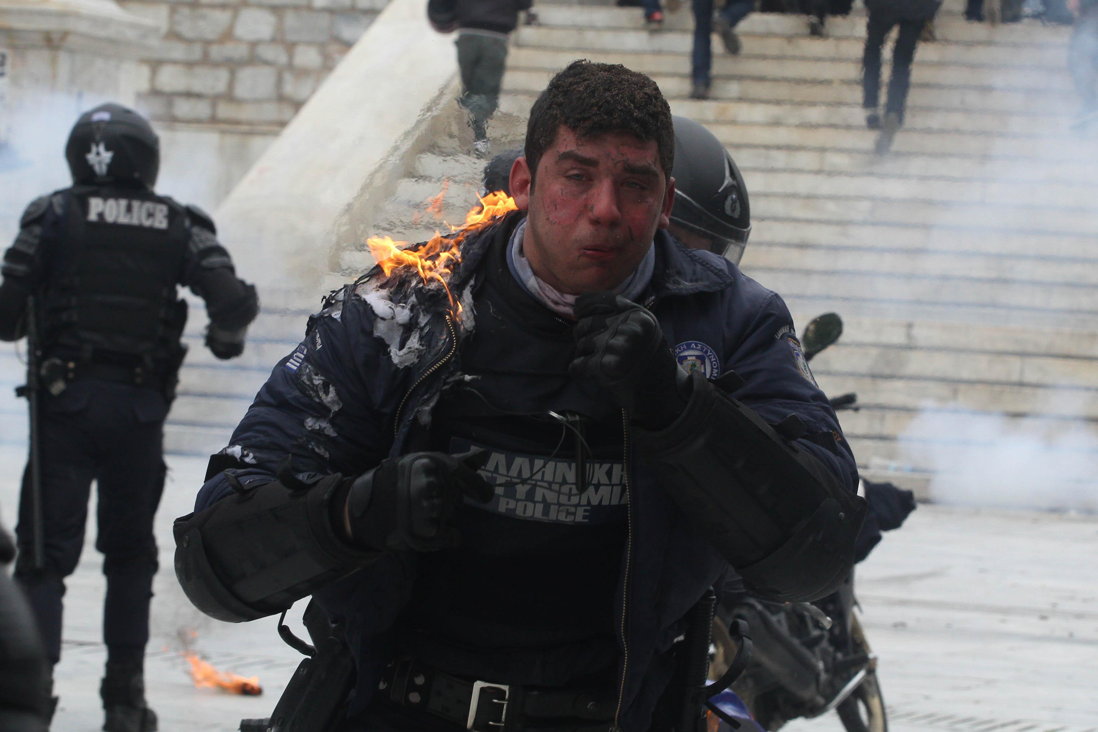Ο αστυνομικός λίγο αφού δέχτηκε τη βόμβα μολότωφ - ΦΩΤΟ EUROKINISSI