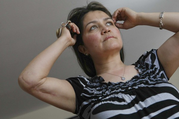 Αυτή είναι η γυναίκα που η πλαστική στο στήθος της έσωσε τη ζωή!