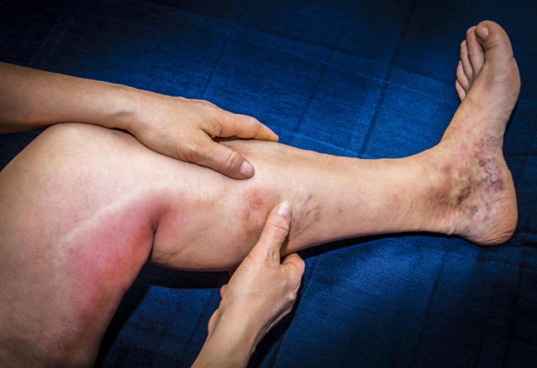 Φλεβίτιδα: Όλα τα αίτια και τα συμπτώματα που πρέπει να δείτε εγκαίρως | Newsit.gr