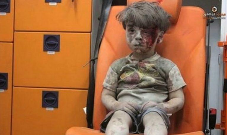 Πώς είναι σήμερα το αγόρι – σύμβολο των βομβαρδισμών στο Χαλέπι [vid] | Newsit.gr