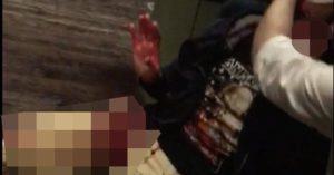 Λονδίνο: Έλληνας τραυματίας μέσα στην παμπ του τρόμου! «Έχω ματώσει»