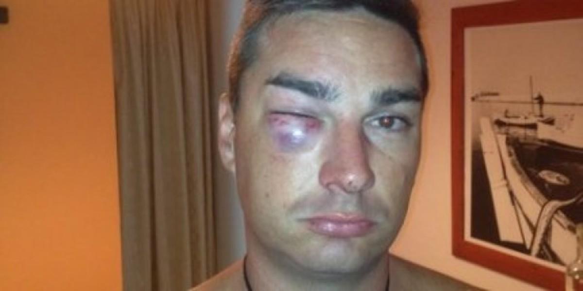 Κρήτη: Η απάντηση της αστυνομίας στις καταγγελίες του Νεοζηλανδού που προκάλεσαν σάλο! | Newsit.gr