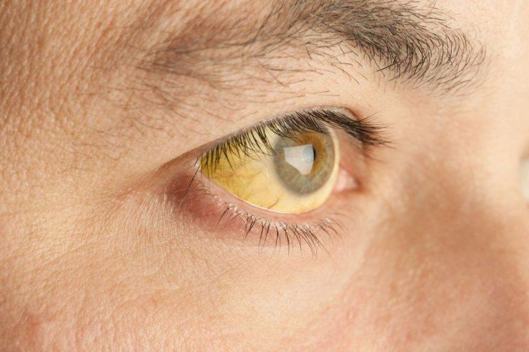 Χολερυθρίνη: Τι είναι, φυσιολογικές τιμές και ασθένειες που θέλουν προσοχή | Newsit.gr