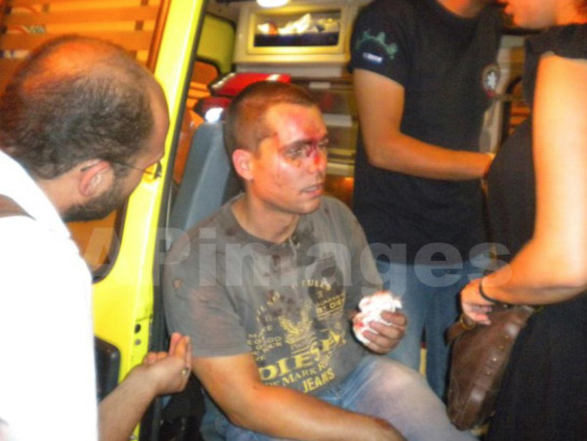 Τους φώναξαν: Θα πεθάνετε κουμμούνια! Και τους όρμησαν με ένα pitbull! | Newsit.gr