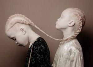 Δίδυμα με αλμπινισμό γίνονται viral χάρη στην ιδιαίτερη ομορφιά τους [pics]