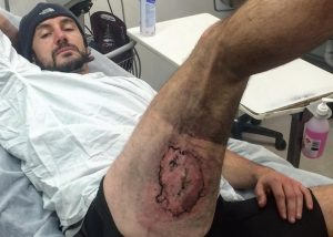 Κάηκε ποδηλάτης όταν πήρε φωτιά το iPhone του