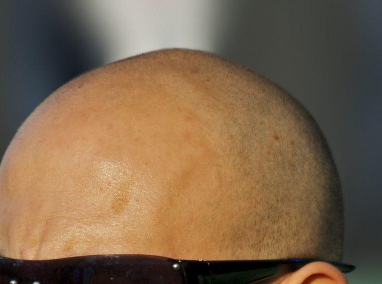 Ανακαλύφθηκε χημική ουσία που φυτρώνει μαλλιά! | Newsit.gr
