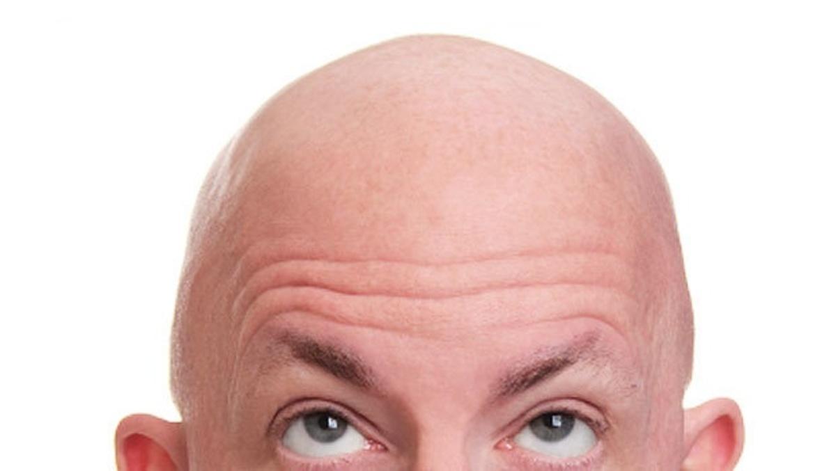Βρέθηκε το εμβόλιο κατά της φαλάκρας! | Newsit.gr
