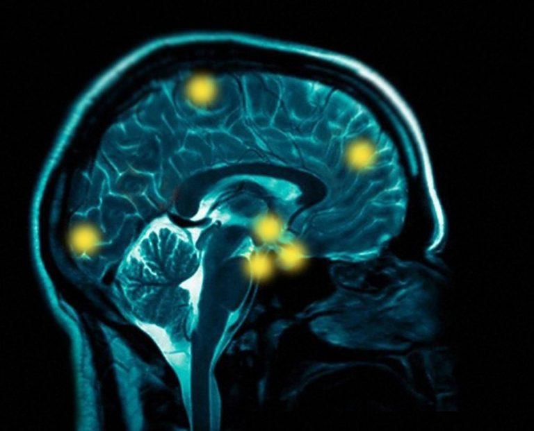 Ο εγκέφαλος είναι «καλωδιωμένος» στην ανάγνωση | Newsit.gr