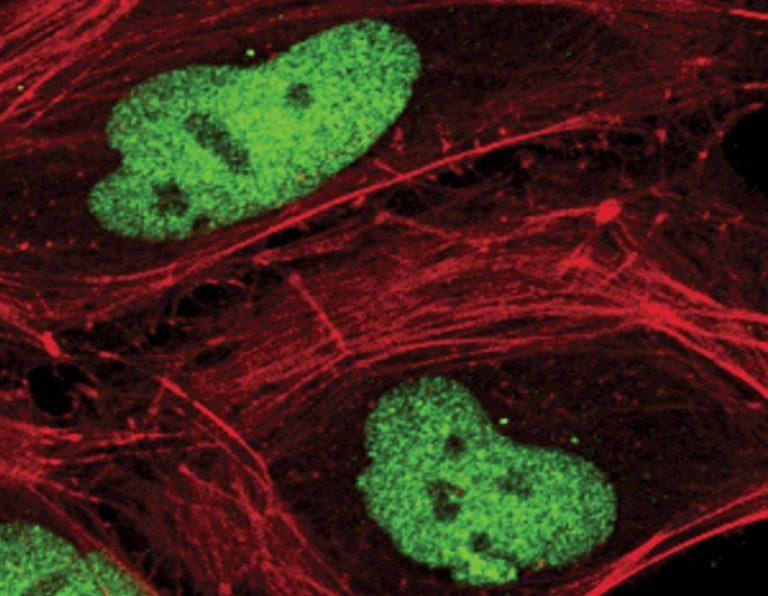 Γονίδιο δείχνει τον κίνδυνο εμφάνισης καρκίνου του στήθους | Newsit.gr