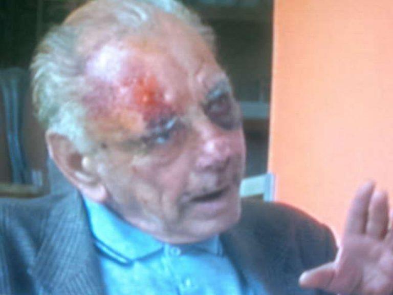 Αχαϊα:Εφιάλτης στο δρόμο για το σπίτι-»Με έκαναν μαύρο στο ξύλο»! | Newsit.gr