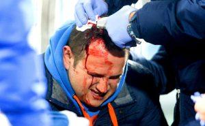 Ηρακλής – ΠΑΣ Γιάννινα: Σοβαρά επεισόδια, τραυματίστηκε δημοσιογράφος! Διεκόπη το ματς για 15′ [vid, pics]