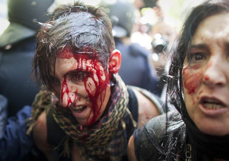 Πάνω από 70 τραυματίες σε συγκρούσεις αστυνομικών και πολιτών στην Ισπανία – ΒΙΝΤΕΟ | Newsit.gr