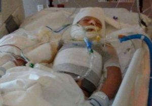 Χαροπαλεύει 10χρονος θύμα bullying – Tον περιέλουσε με βενζίνη και του έβαλε φωτιά [pics]