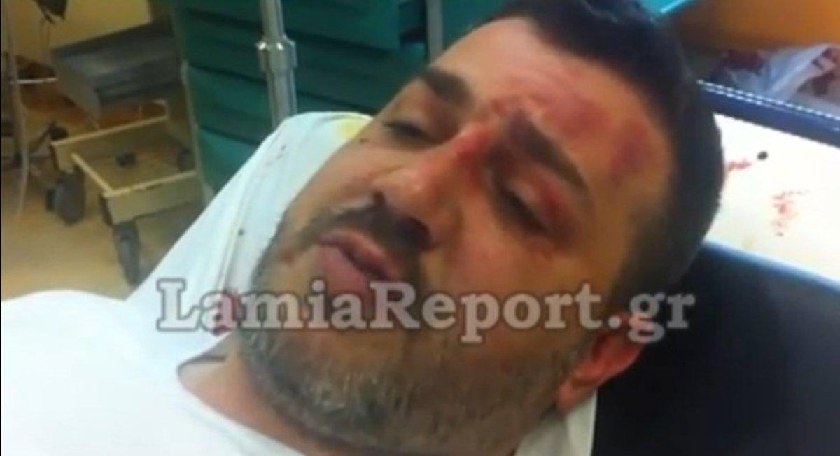 Λαμία: «Έτσι με λήστεψαν» – (Video) | Newsit.gr