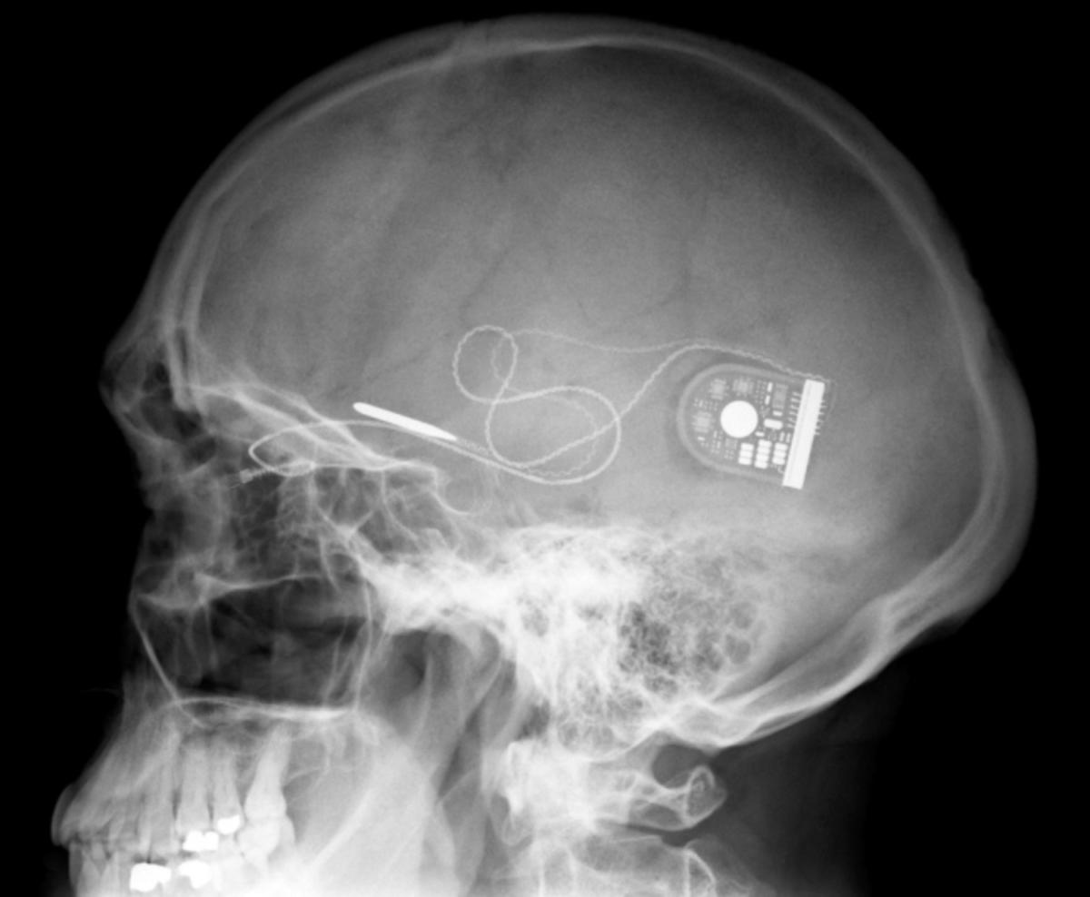 Ιατρικό θαύμα! Τυφλός Παραολυμπιονίκης είδε το φως του με ένα μικροτσιπ! | Newsit.gr