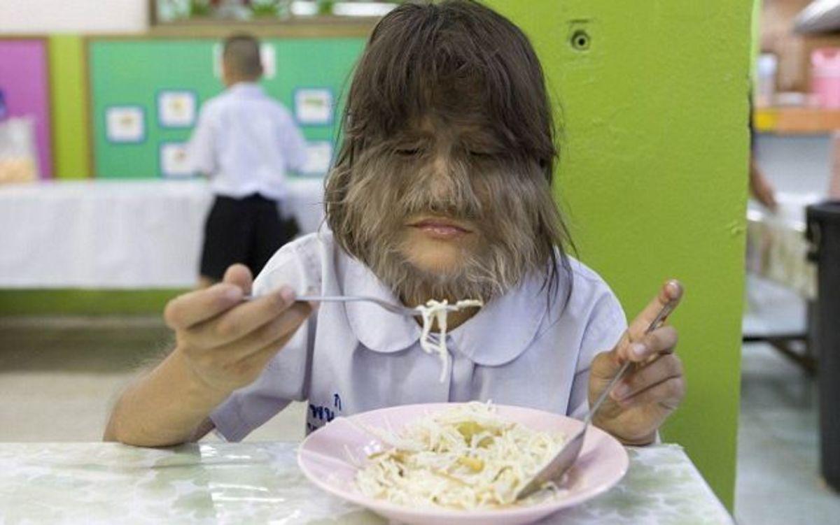 Το πιο τριχωτό κορίτσι στον κόσμο | Newsit.gr