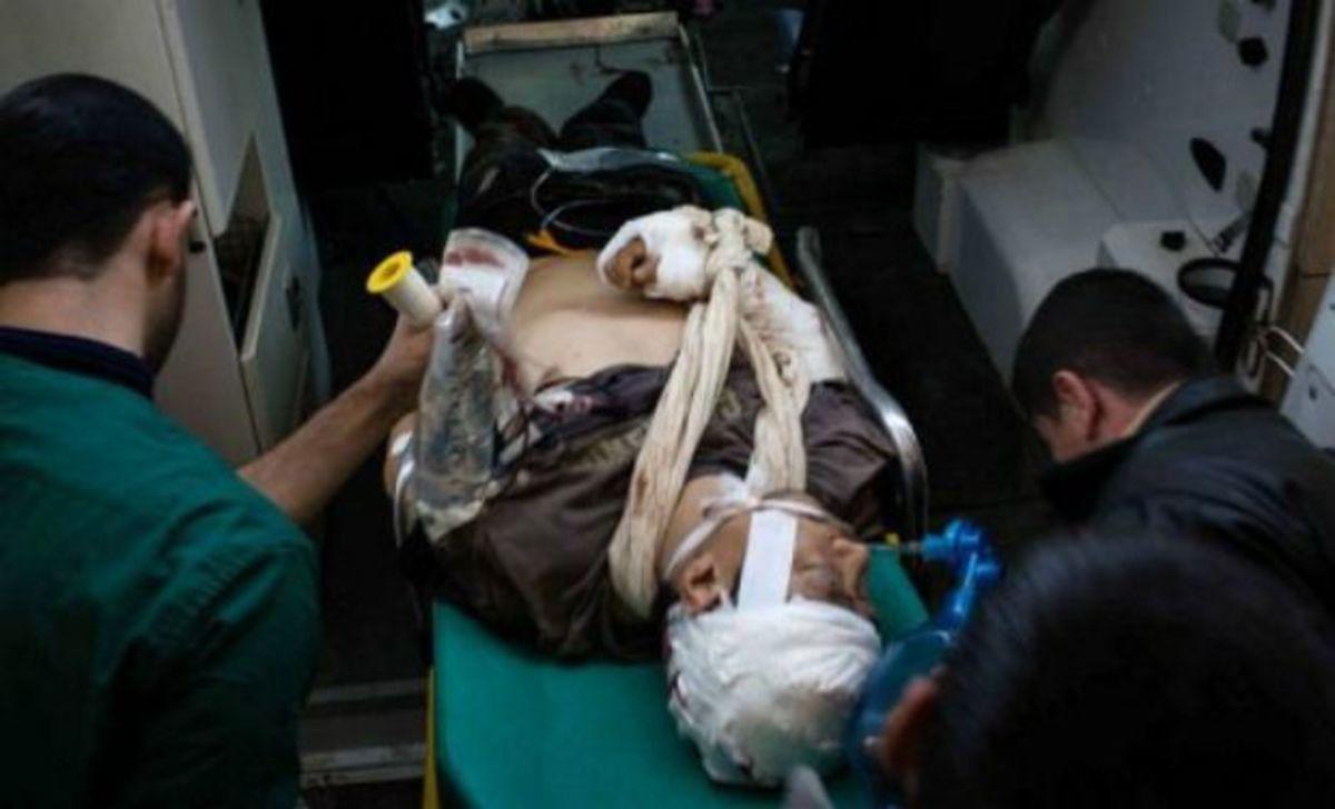 Πέθανε ο γάλλος φωτορεπόρτερ που τραυματίστηκε στη Συρία | Newsit.gr