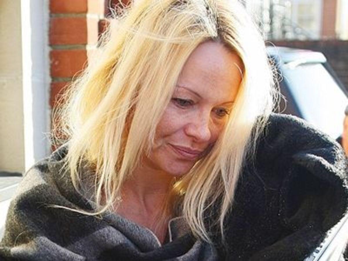 Τα χάλια της Pamela Anderson! | Newsit.gr