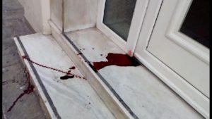 ΠΑΟΚ – ΑΕΚ: Αιματηρή συμπλοκή οπαδών τα ξημερώματα [pics]