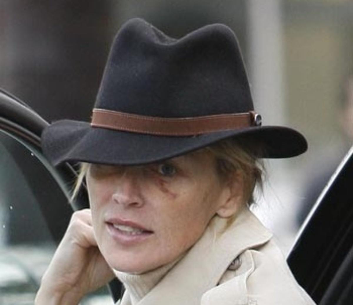 Η Σάρον Στόουν με μελανιασμένα μάτια!   Newsit.gr