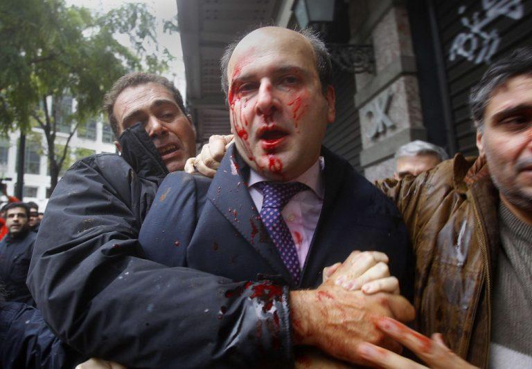 Προκαταρκτική έρευνα για την επίθεση στον Κ. Χατζηδάκη | Newsit.gr