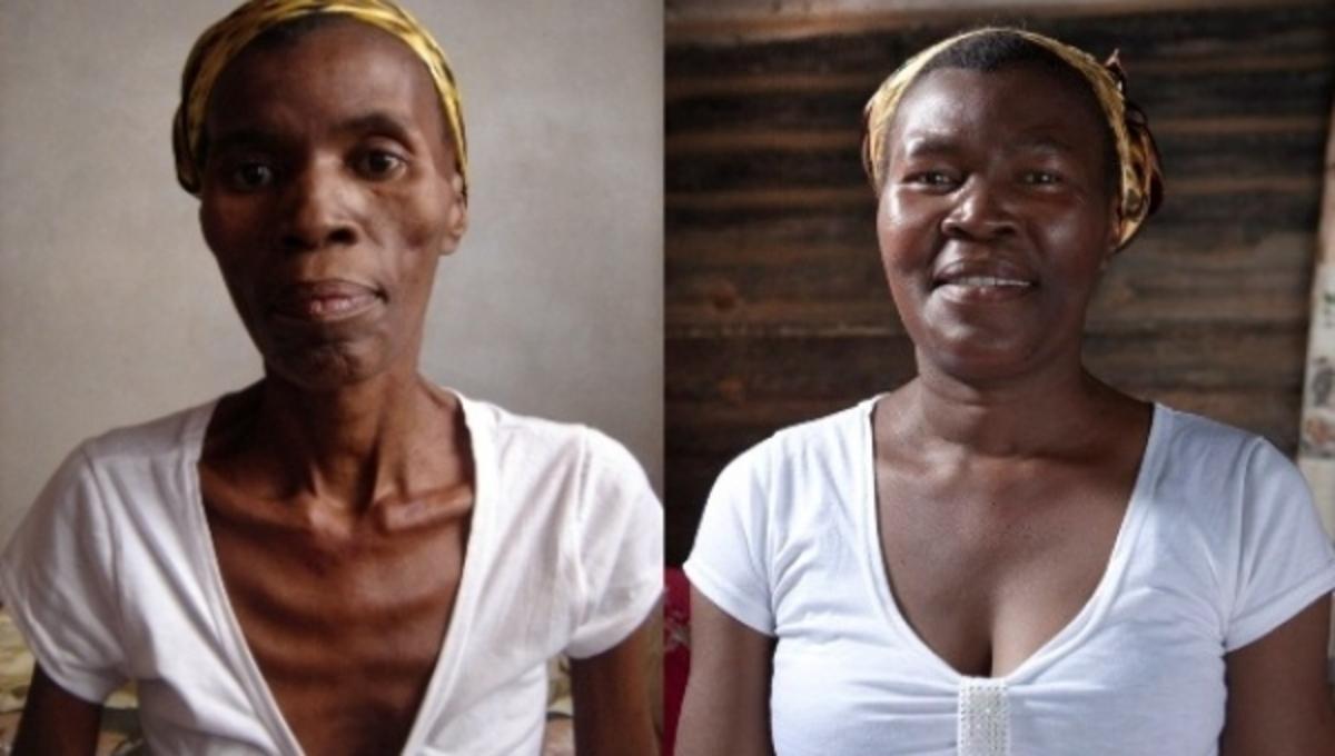 Συγκλονιστικό βίντεο: Ασθενής με AIDS, λιώνει σαν το κερί | Newsit.gr