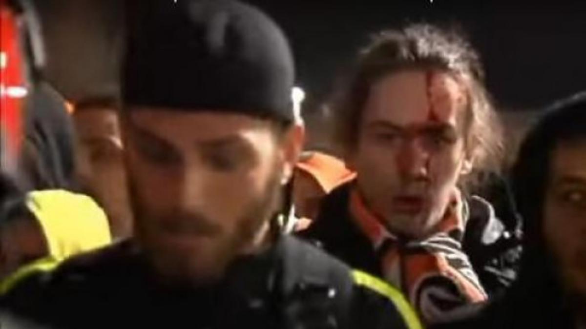 Σοβαρά επεισόδια στο Μπιλμπάο – ΑΠΟΕΛ! Άγριο ξύλο με τραυματίες [vid] | Newsit.gr