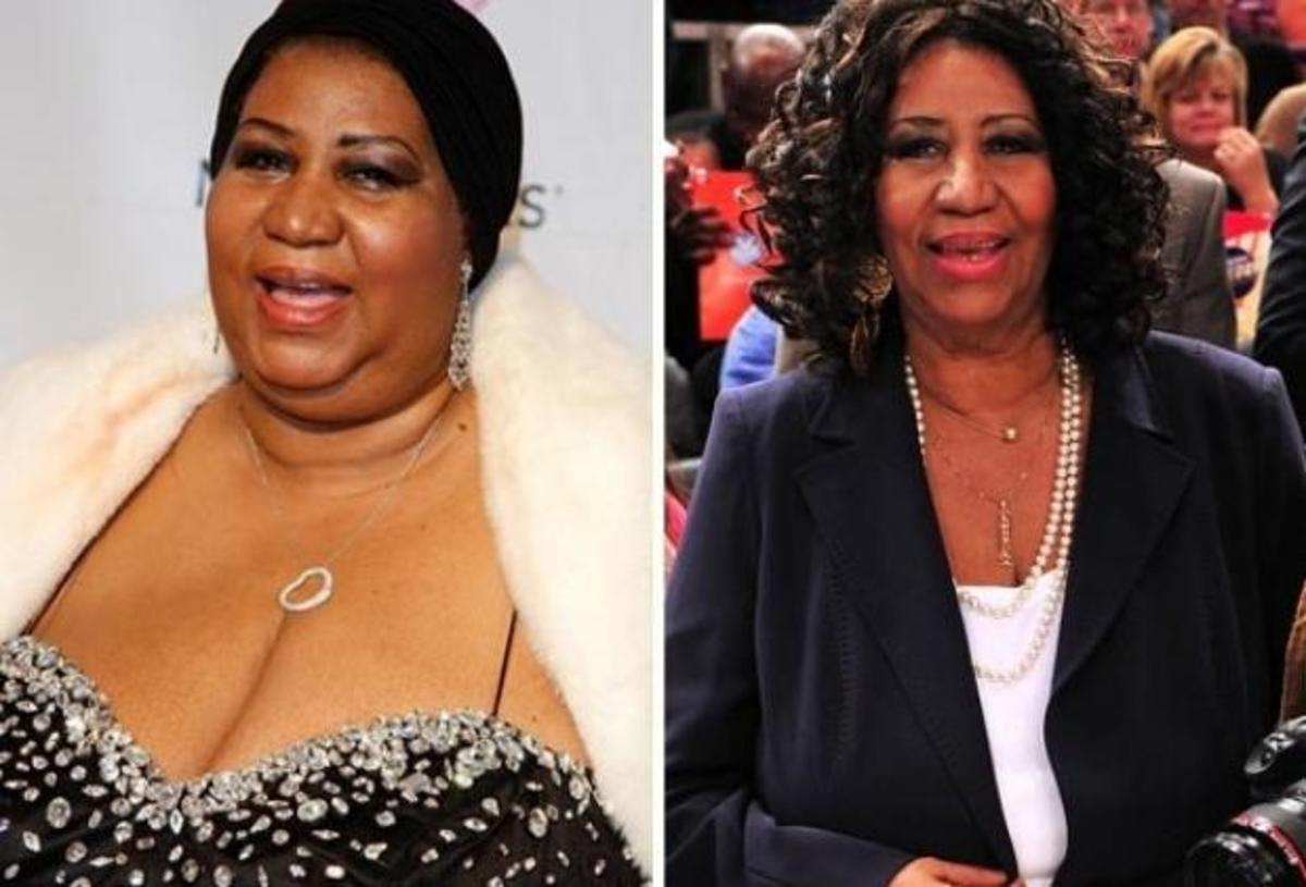 Celebrities που έχασαν κιλά και κέρδισαν… τις εντυπώσεις | Newsit.gr