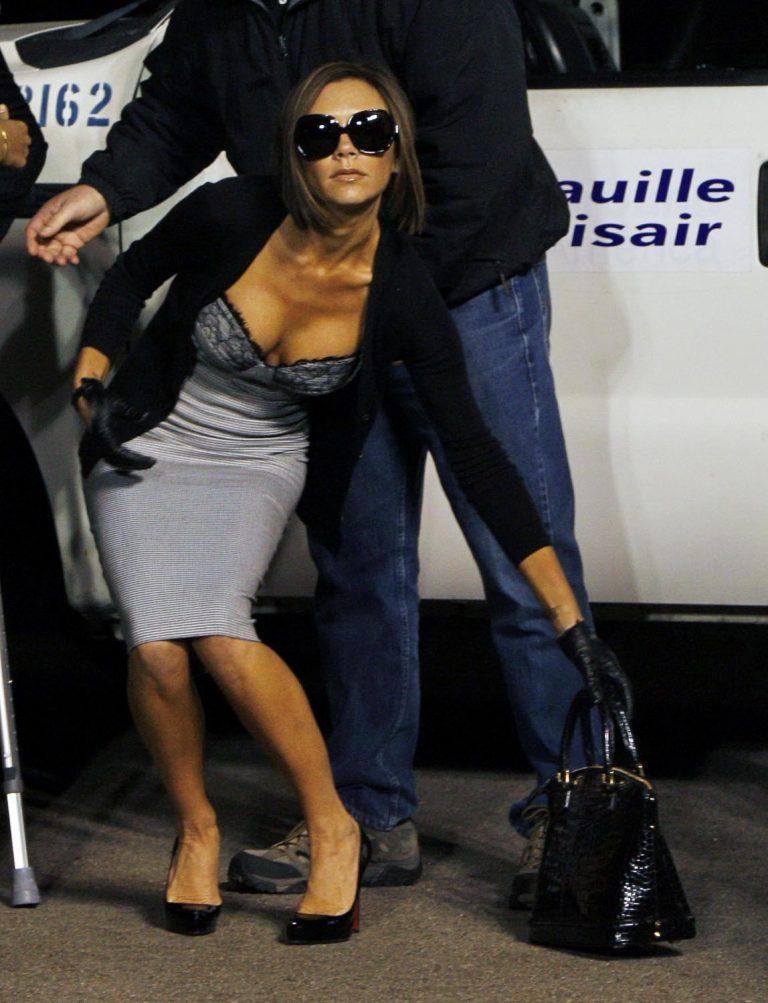 Victoria Beckham: χειρουργείο για αφαίρεση των κάλων | Newsit.gr