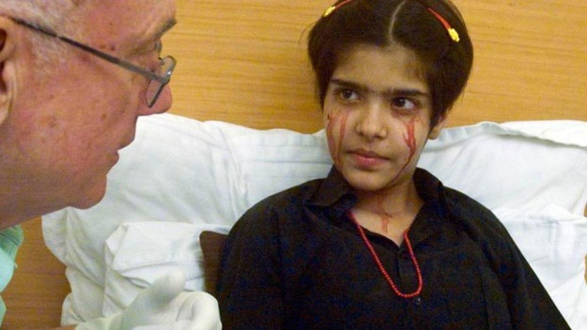 Όταν κλαίει βγάζει αίμα αντί για δάκρυα – ΒΙΝΤΕΟ | Newsit.gr